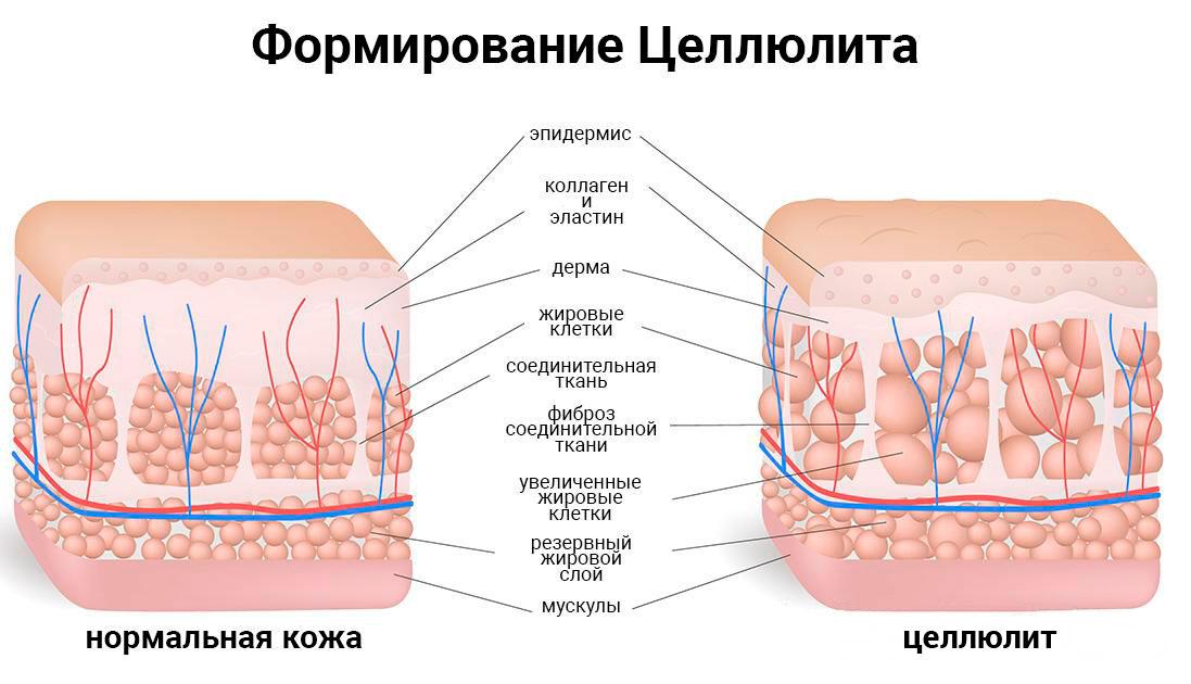 Формирование целлюлита